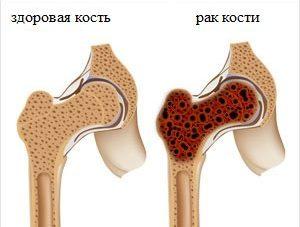 Рак суставов: симптомы, признаки с фото, лечение и прогноз