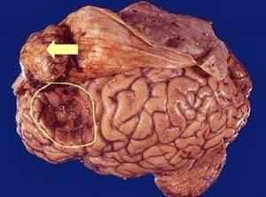 Менингиома головного мозга прогноз жизни