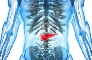 Липоматоз поджелудочной железы: лечение, диета, степени и прогноз продолжительности жизни