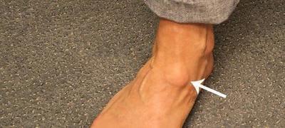 Жировик на ноге: фото, причины и быстрое лечение
