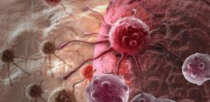Рак яичников: симптомы, стадии, лечение, метастазы, операция и прогноз