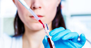 Анализ крови при лимфоме: показатели у взрослых и детей, диагностика