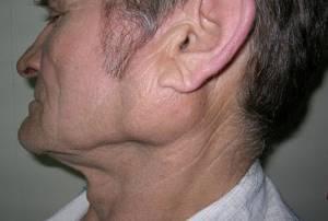 Аденома слюнной железы: причины, лечение, как проходит операция по удалению