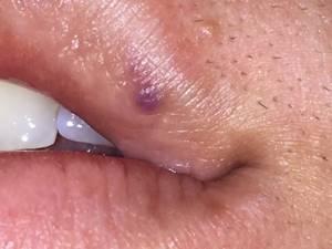 Гемангиома на лице: лечение, фото на губе и носу, причины и удаление