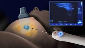 Рак молочной железы 1 стадии: прогноз выживаемости, симптомы, лечение и фото