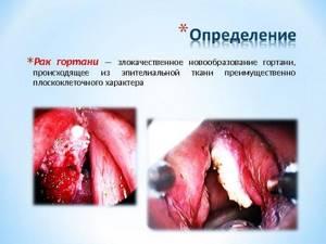 Рак горла: симптомы, фото на ранних стадиях