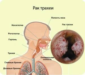 Рак трахеи: причины, симптомы, стадии, лечение и диагностика