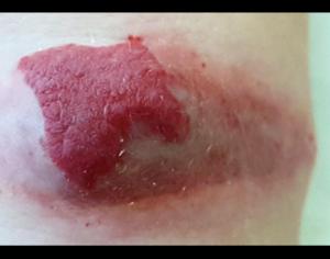 Гемангиома кожи: фото, причины возникновения, лечение и симптомы