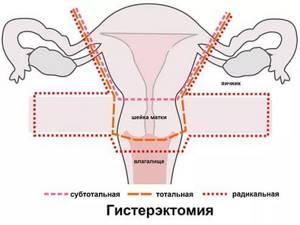 Подслизистая лейомиома матки: что это такое, причины, риски, лечение и операция