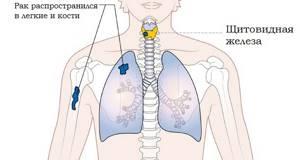 Фолликулярный рак щитовидной железы: прогноз после операции, симптомы, лечение и диагностика