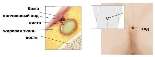 Рак копчика: симптомы, фото, проявление и лечение