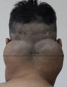 Жировик на шее: фото, причины и быстрое лечение