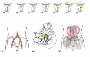 Плоскоклеточный рак шейки матки: виды, прогноз, лечение, причины и симптомы