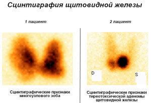 Сцинтиграфия: подготовка, как проводится, где сделать, показания и виды