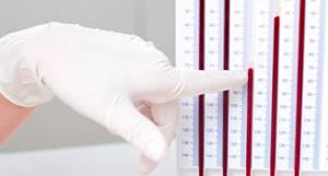 СОЭ при онкологии: уровень показателя, норма и повышение