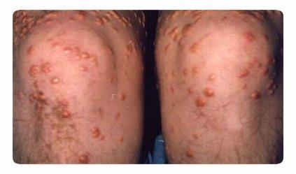 Паховая гранулёма: причины, симптомы, способы заражения и лечение