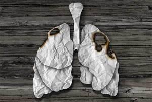 Периферический рак лёгкого: первые симптомы, стадии, причины, диагностика и лечение