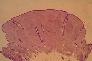Фиброма кожи: лечение, фото, симптомы, чем опасна
