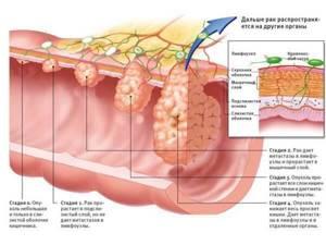 Рак 12-перстной кишки: симптомы, выживаемость, лечение и диагностика