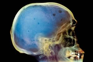 Плазмоцитома: симптомы, лечение, прогноз и диагностика