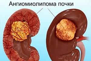 Ангиомиолипома почки: симптомы, лечение, диагностика и опасность