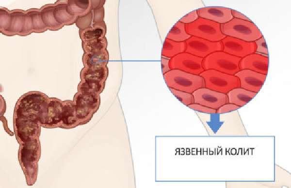 Аденокарцинома кишечника: прогноз, стадии, симптомы и лечение