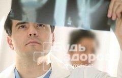 Рак костей: первые симптомы, фото, лечение, стадии и прогноз жизни
