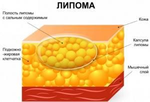 Мази от жировиков: обзор самых эффективных средств
