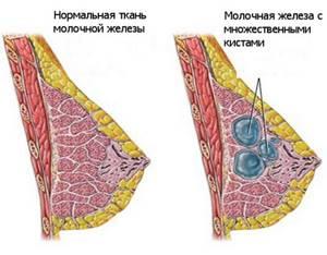 Диффузный фиброаденоматоз молочных желёз: симптомы и лечение