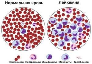 Какие показатели крови указывают на онкологию: анализ крови и расшифровка