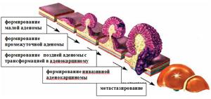 Аденокарцинома сигмовидной кишки: прогноз, стадии и формы