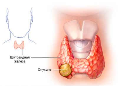 Онкомаркеры щитовидной железы: какие сдавать, норма, расшифровка результатов