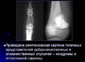 Опухоли костей: классификация, симптомы и диагностика