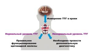 Фолликулярная аденома щитовидной железы: симптомы, лечение и операция