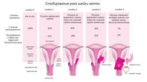 Лучевая терапия при раке шейки матки: лечение, последствия и осложнения