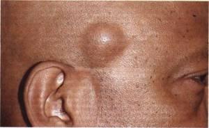 Липома: фото, причины, лечение, чем опасны жировики