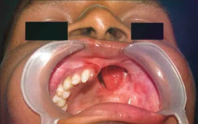 Рак челюсти: причины, симптомы, фото, лечение и стадии