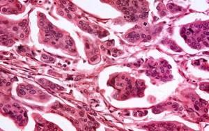 Аденокарцинома молочной железы: прогноз, симптомы и лечение