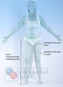 Лимфостаз: всё о заболевании