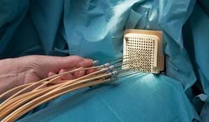 Брахитерапия: эффективность при лечении рака предстательной железы