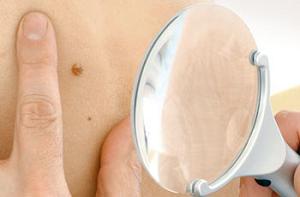 Себорейная кератома: фото, лечение, причины и симптомы