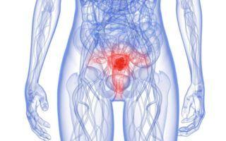 Низкодифференцированная аденокарцинома: прогнозы, стадии и лечение