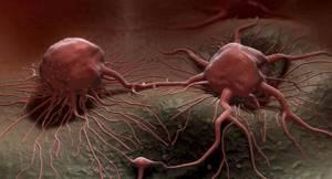 Рак предстательной железы 2 степени: продолжительность жизни, симптомы, прогноз после операции и лечения