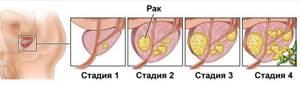 Диагностика рака: как диагностировать рак на ранних стадиях