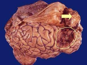 Менингиома: симптомы, лечение, прогноз жизни, причины и диагностика