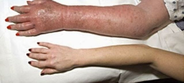 Эритремия: лечение, анализы, стадии и симптомы