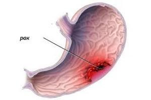 Рак желудка 4 стадии: лечение, симптомы, сколько живут с метастазами