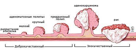 Рак слепой кишки: симптомы, стадии, прогноз и операция